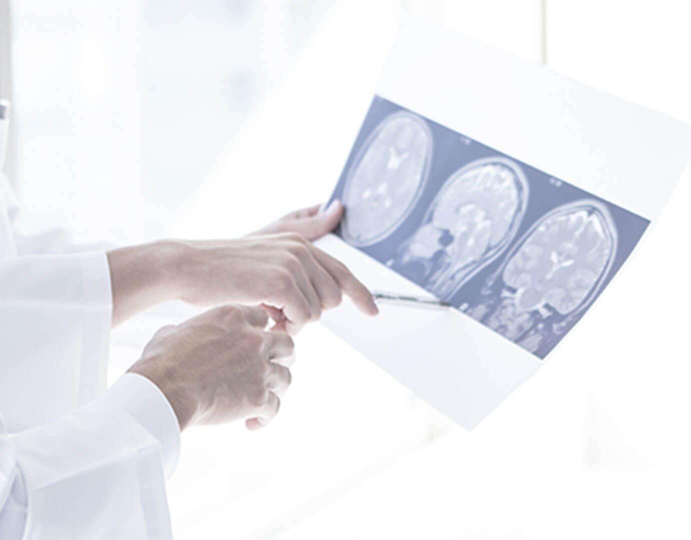 脳神経内科の専門医